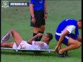 Humiliating stretcher FAIL! (Desportivo Brasil)